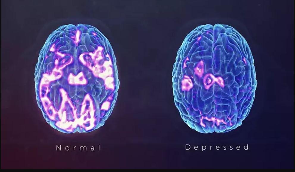 Ecco le differenze cerebrali nelle persone con la depressione