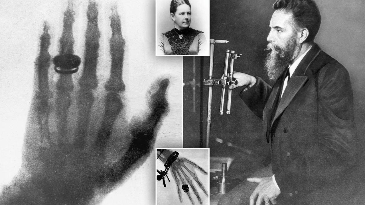 La scoperta dei raggi-X da parte di Röntgen ha rivoluzionato la medicina