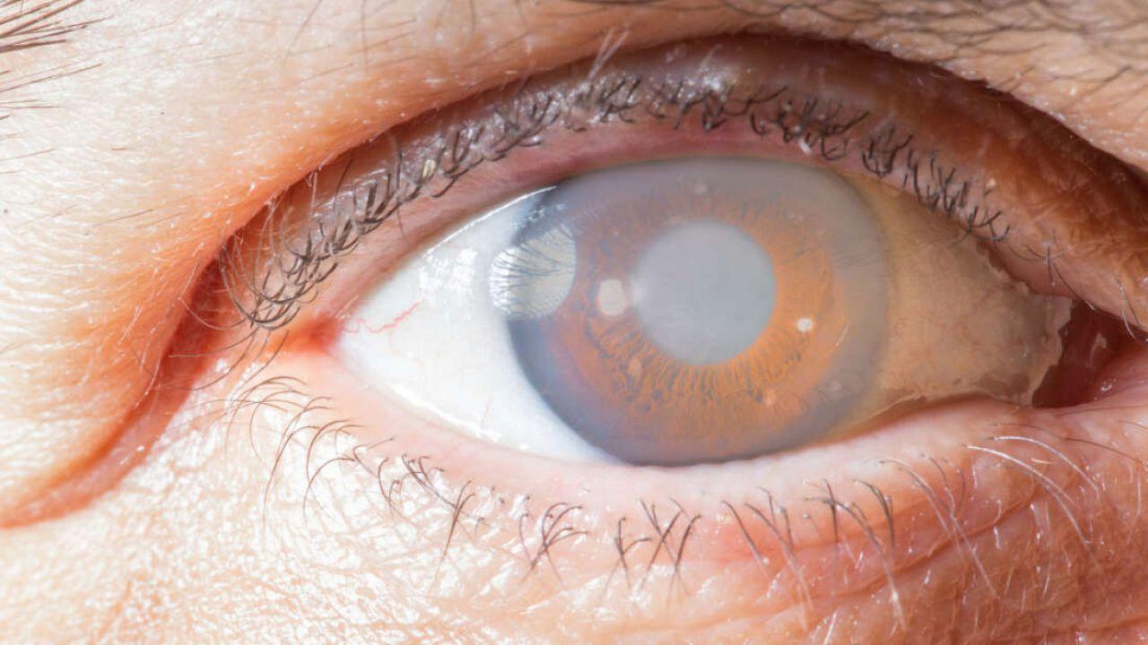 Non vedente riacquista la vista: avvenuto il primo trapianto di cornea artificiale