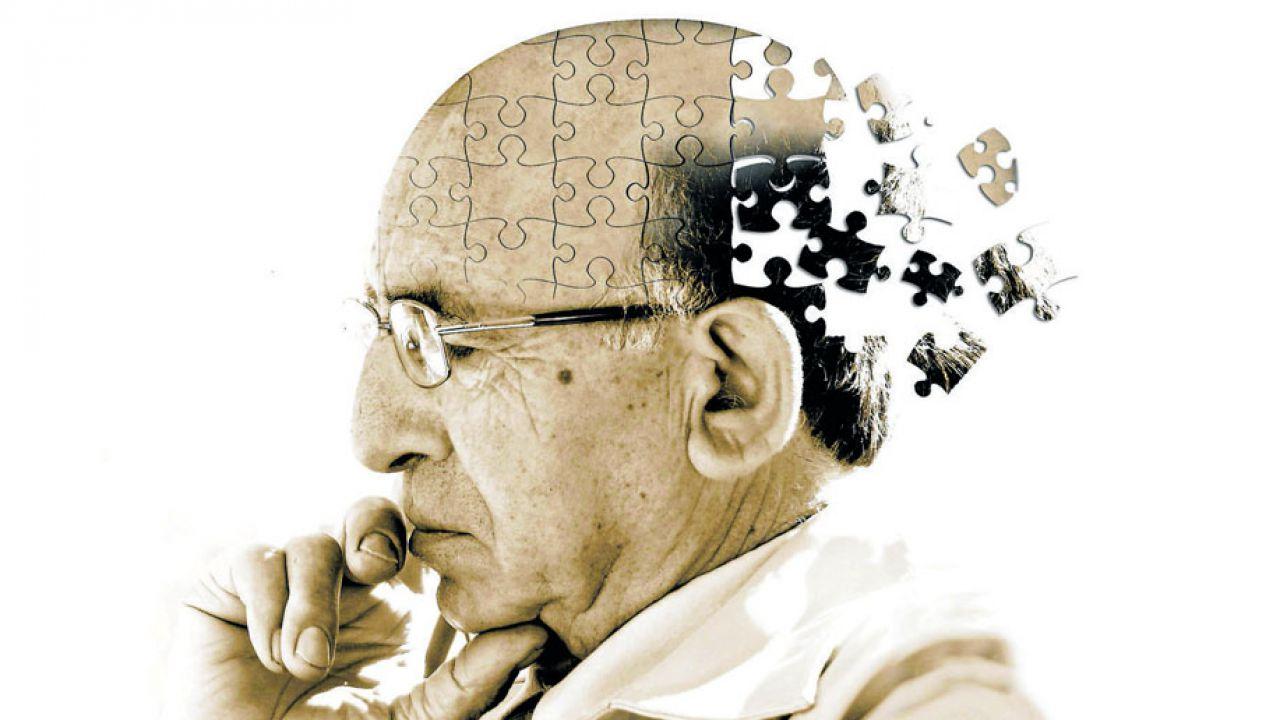 Potrebbero esistere 3 sottotipi diversi della malattia di Alzheimer