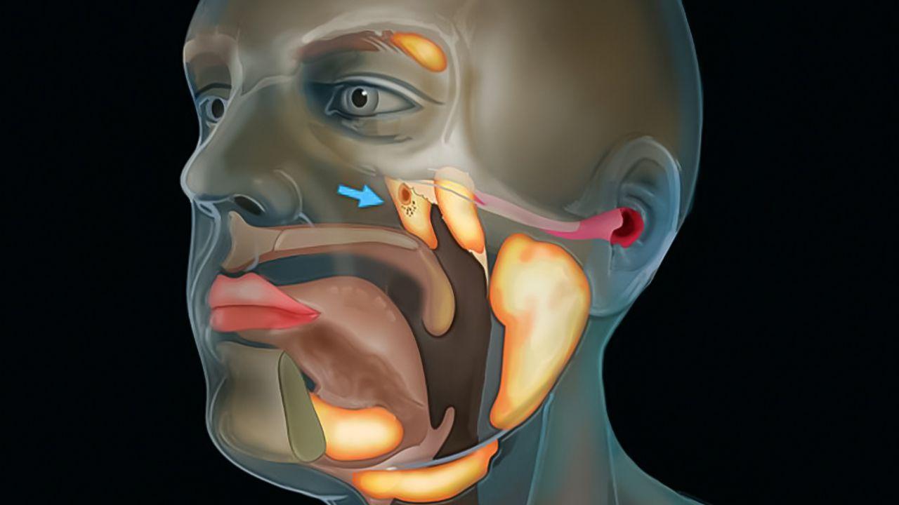 Scoperto un nuovo organo vicino al nostro cranio? Forse delle nuove ghiandole salivari