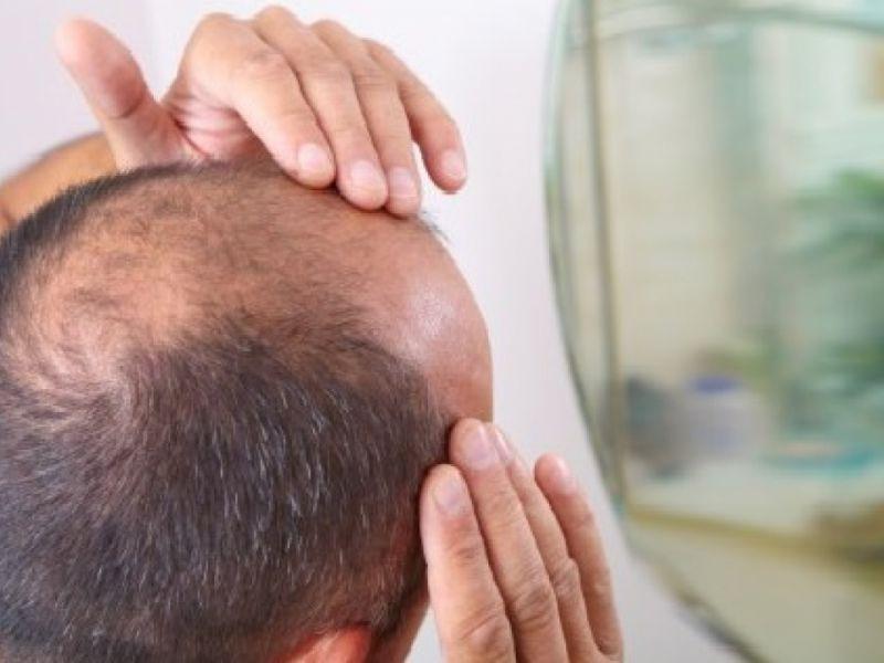 Una nuova terapia per la ricrescita dei capelli grazie alle cellule staminali dà speranza